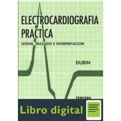 Electrocardiografia Practica Lesion, Trazado