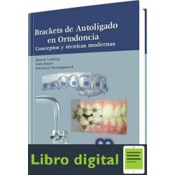 Brackets De Autoligado En Ortodoncia