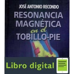 Resonancia Magnetica En El Tobillopie