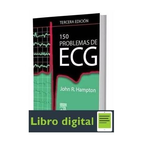 150 Problemas De Ecg John R. Hampton