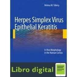 Herpes Simplex Virus Epithelial Keratitis Tabery