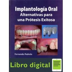 Implantologia Oral Una Protesis Exitosa
